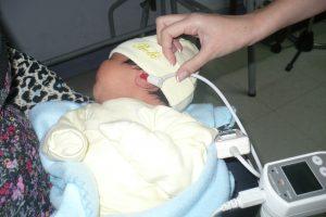 evaluación auditiva recién nacidos